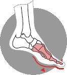 Lesser toes deformity visualisation