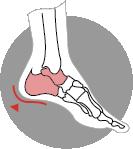 Ankle Arthroscopy Visualisation
