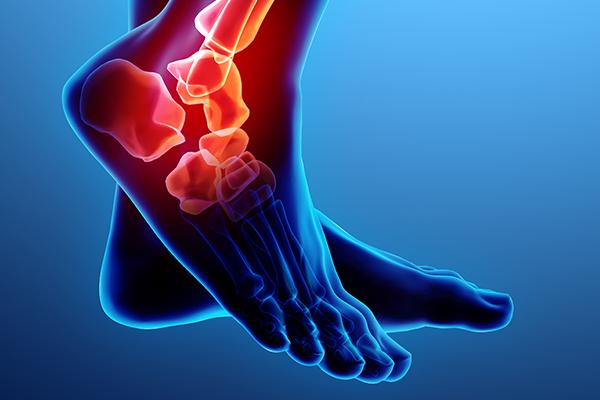 Ankle injury Visualisation